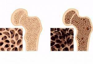 osteop